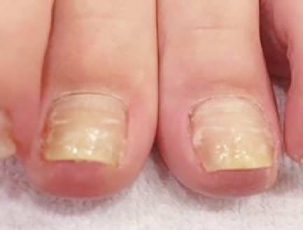 nailcare_3